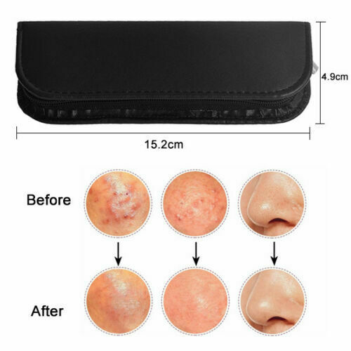 Best 8pcs Blackhead Extractor Remover Tool Kit Pimple Blackhead Acne Blemish Hot price